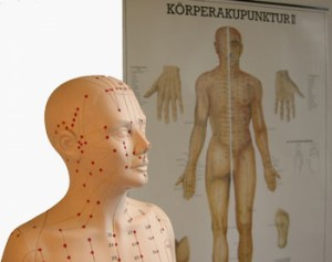 Schmerzfrei durch Akupunktur Orthopädie Zentrum Hannover